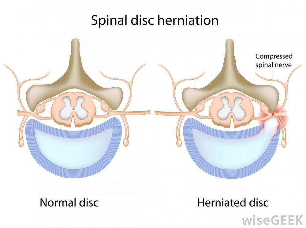 disc herniation - conditions - pain doctor, Cephalic Vein