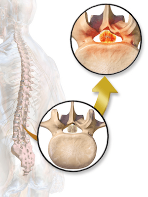Spinal Stenosis | PainDoctor.com