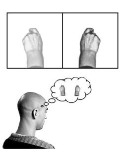 Phantom-Limb-Pain-Mirror-Brain-e1389380823662