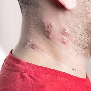 shingles virus