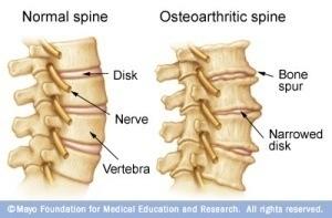 osteoarthritic-spine