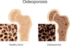 osteoporosis-comparison