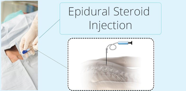 Sciatic Nerve Pain And Epidural Steroid Injections - Pain Doctor