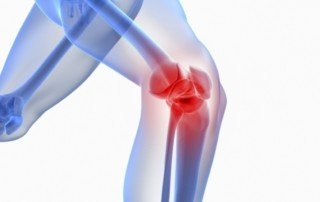 How You Can Manage Osteoarthritis Of The Knee Pain   PainDoctor.com