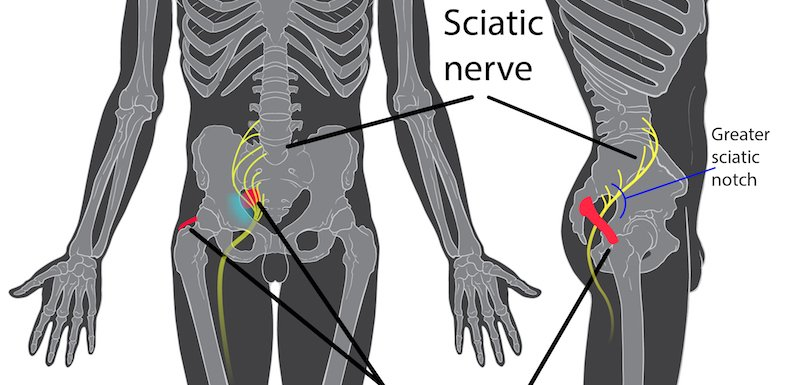 Would A Sciatica Massage Help Relieve My Pain? | PainDoctor.com
