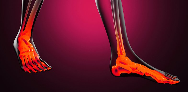 Osteoporosis: Causes, Prevention, And Treatment | PainDoctor.com