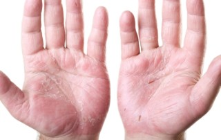 11 Early Psoriatic Arthritis Symptoms You Should Know | PainDoctor.com